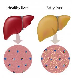 fattyliver