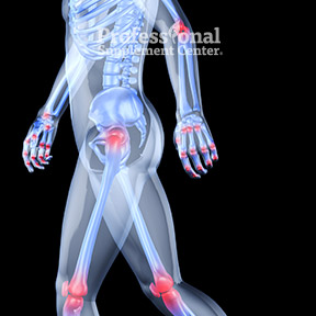UnderstandingOsteoarthritis